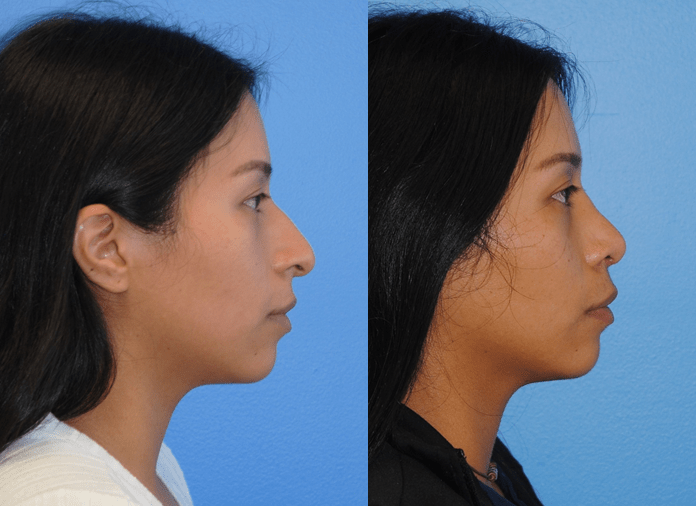 Rhinoplasty-Side-Profile-and-Projection