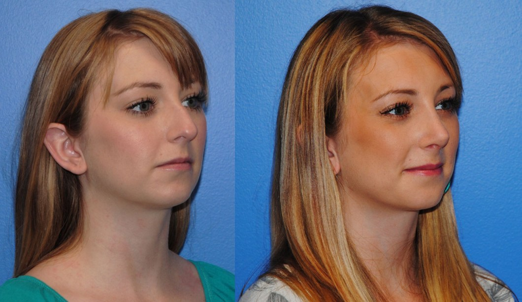 Rhinoplasty-straightening-deviated-nose-newport-beach