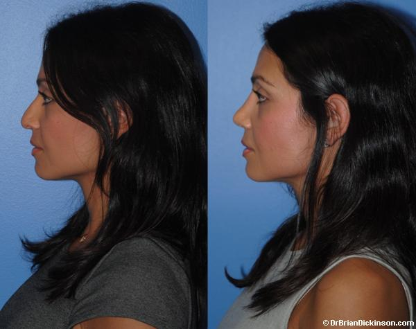 Female Middle Eastern Primary Rhinoplasty in Newport Beach