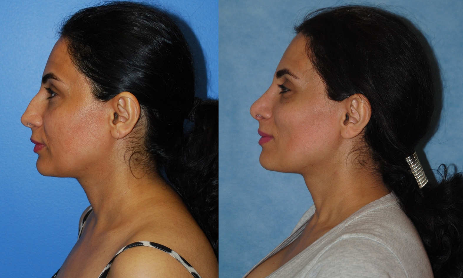Middle Eastern Primary Rhinoplasty to Correct Dorsal Hump