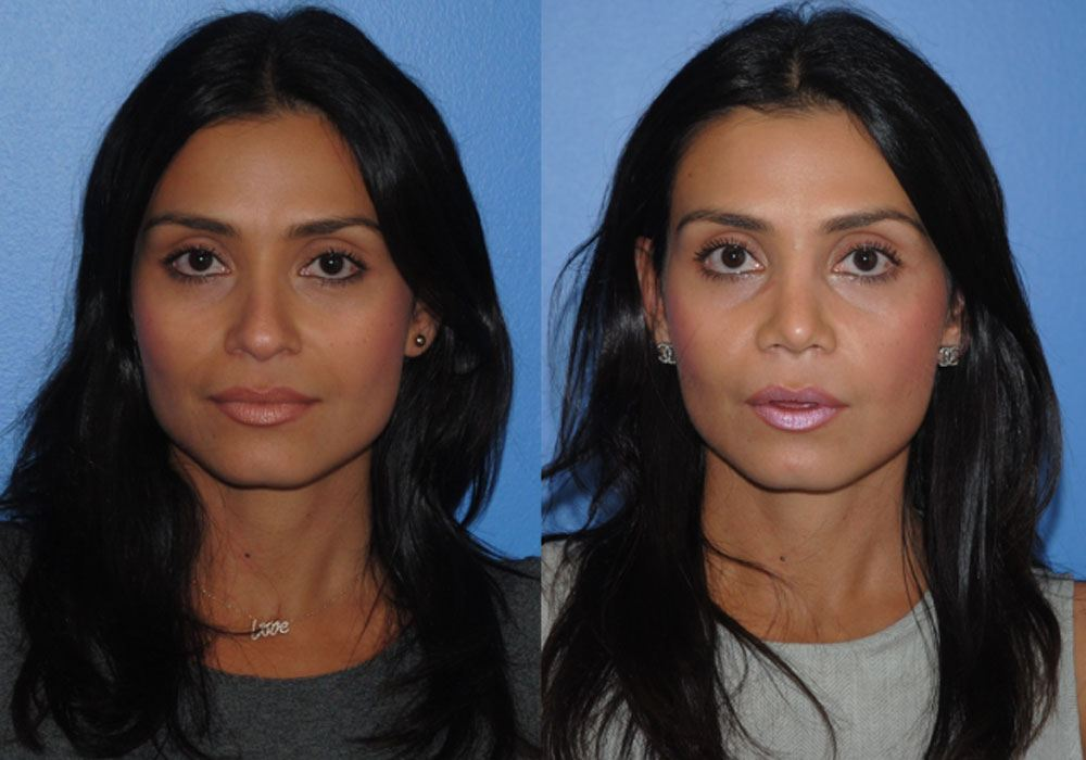 normal_Rhinoplasty_cosmetic_surgeon_newport_beach