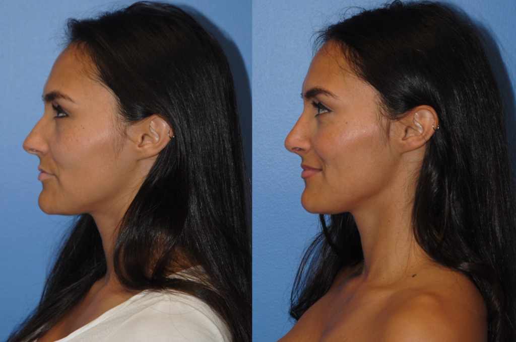 primary-rhinoplasty-dickinson-newport-beach