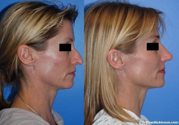 Primary Rhinoplasty Photos