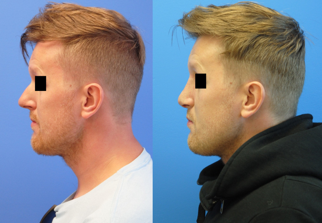 radix-graft-tip-deprojection-rhinoplasty-newport-beach