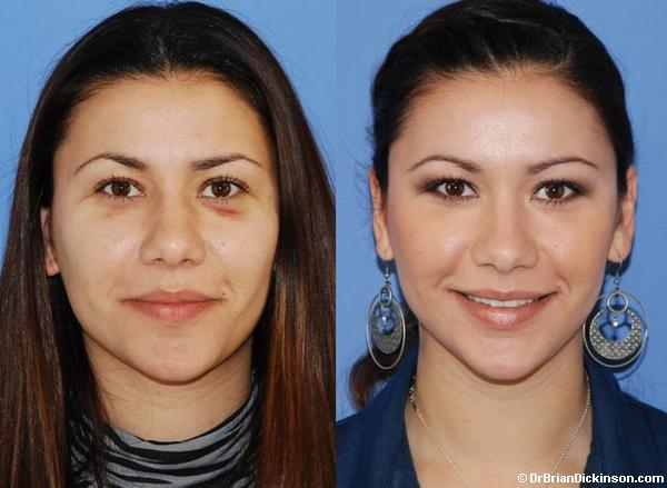 Rhinoplasty Before and After Photos in Newport Beach