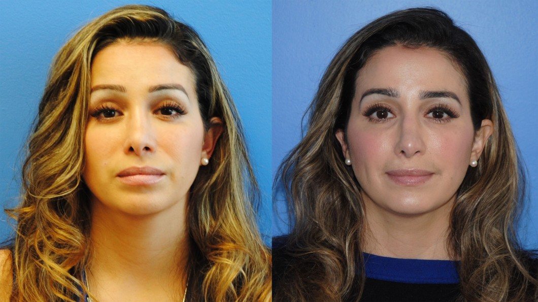 secondary-rhinoplasty-to-correct-tip-position-newport-beach