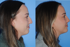 Dorsal-Hump-Post-Rhinoplasty-Keeping-a-Small-Amount-of-Dorsal-Hump