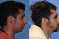 Dorsal-Hump-rhinoplasty-Newport-Beach-Brian-Dickinson-