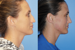 Narrowing-the-Nasal-Tip-Facial-Asymetry-Makes-One-Beautiful-Profile