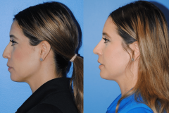 Narrowing-the-Nasal-Tip-and-Straightening-the-Nasal-Dorsum-Profile