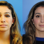 Revision-Rhinoplasty-Front