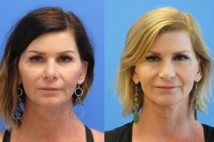 Revision-Rhinoplasty-Newport-Beach