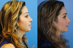 Revision-Rhinoplasty-Profile-newport-beach