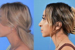 Rhinoplasty-Before-After-Brian-Dickinson-M.D.