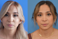 Rhinoplasty-Tip-Refinement-Before-After-Brian-Dickinson-M.D.
