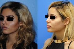 Rhinoplasty-surgeon-Brian-Dickinson-MD