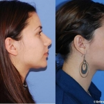 Rhinoplasty to define nasal dorsum by Dr. Dickinson in Newport Beach