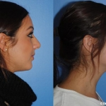 dorsal-hump-reduction-rhinoplasty