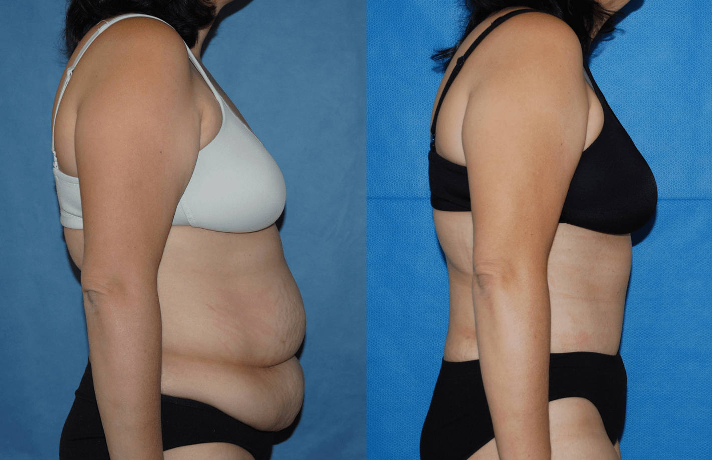 Abdominoplasty Post Bariatric_ NB