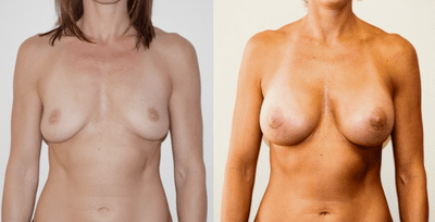Breast Augmentation Subglandular Silicone Implant