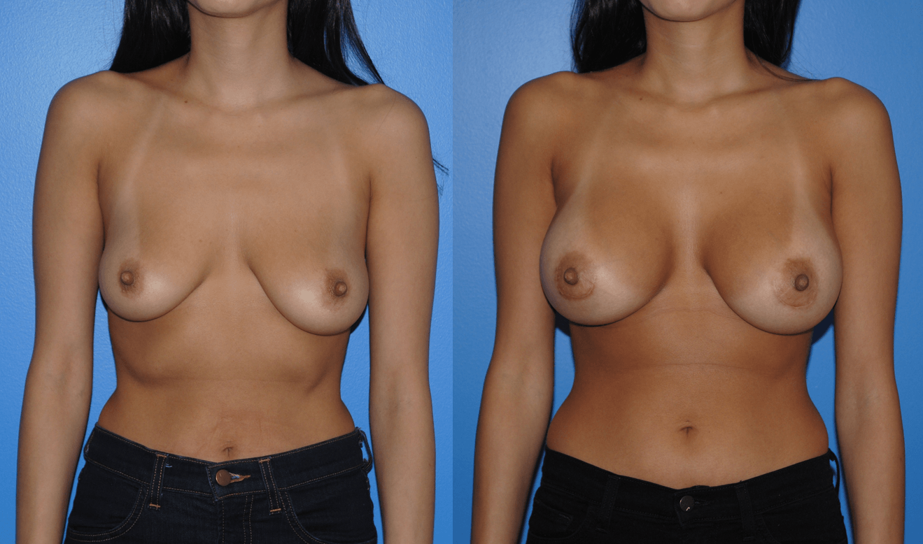 Breast Augmentation_Silicone Breast Implants_Brian Dickinson M.D