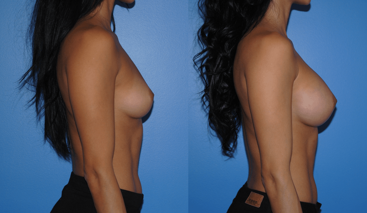 Natural Looking Breast Augmentation with Silicone Implants
