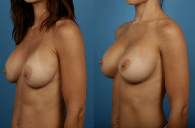 Breast Augmentation_Sizing_Silicone Breast Implants Newport Beach