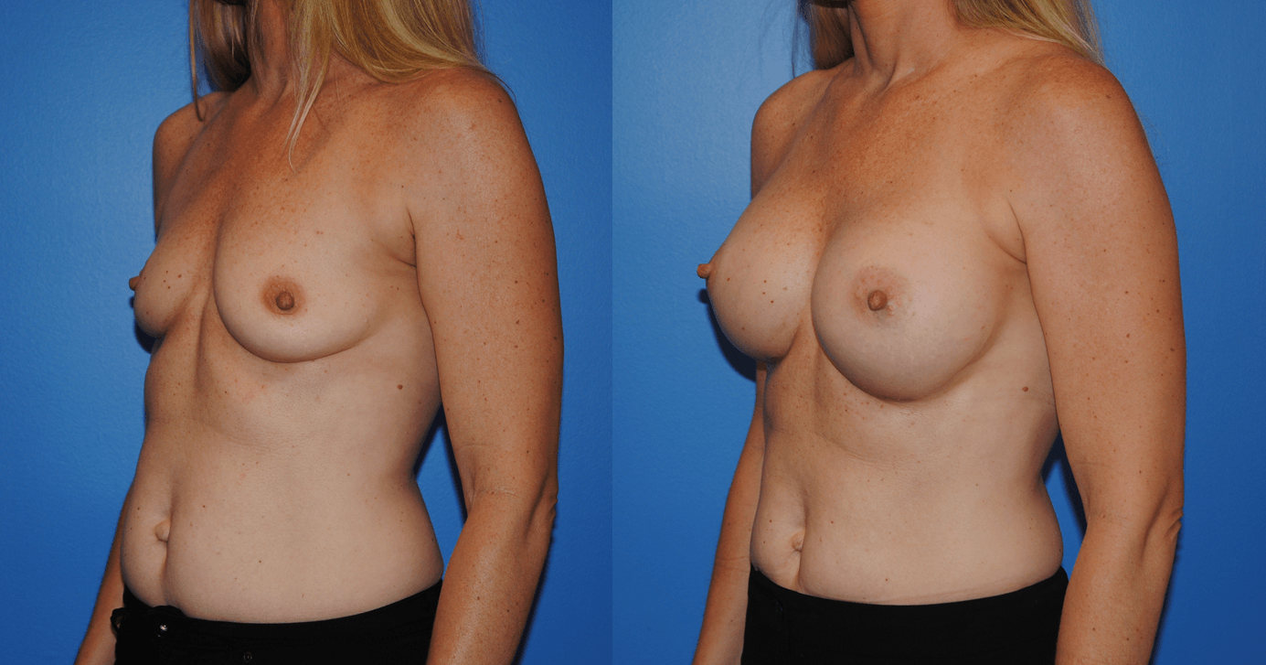 Summer Breast Augmentation