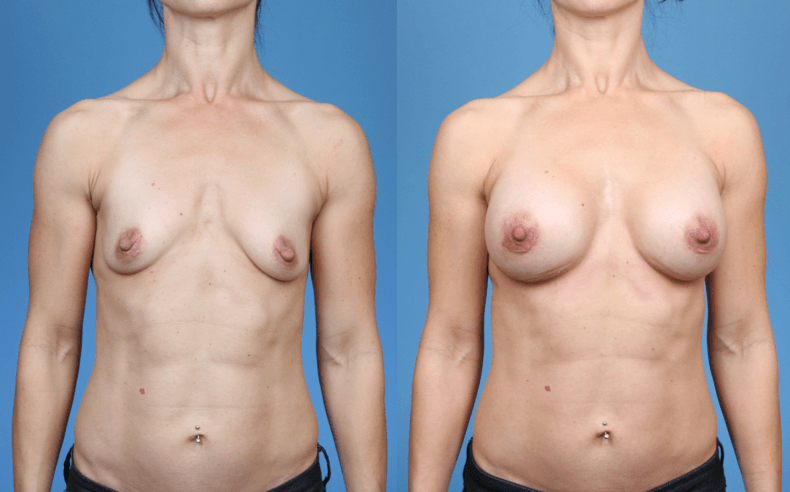 Elite Athlete Breast Augmentation
