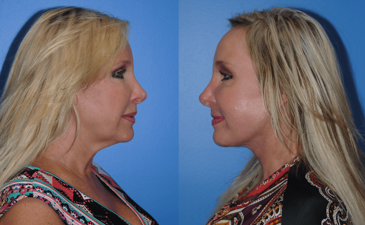 Board Certified Facelift Surgeon Newport Beach