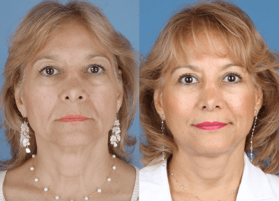 Facelift Surgery Newport Beach