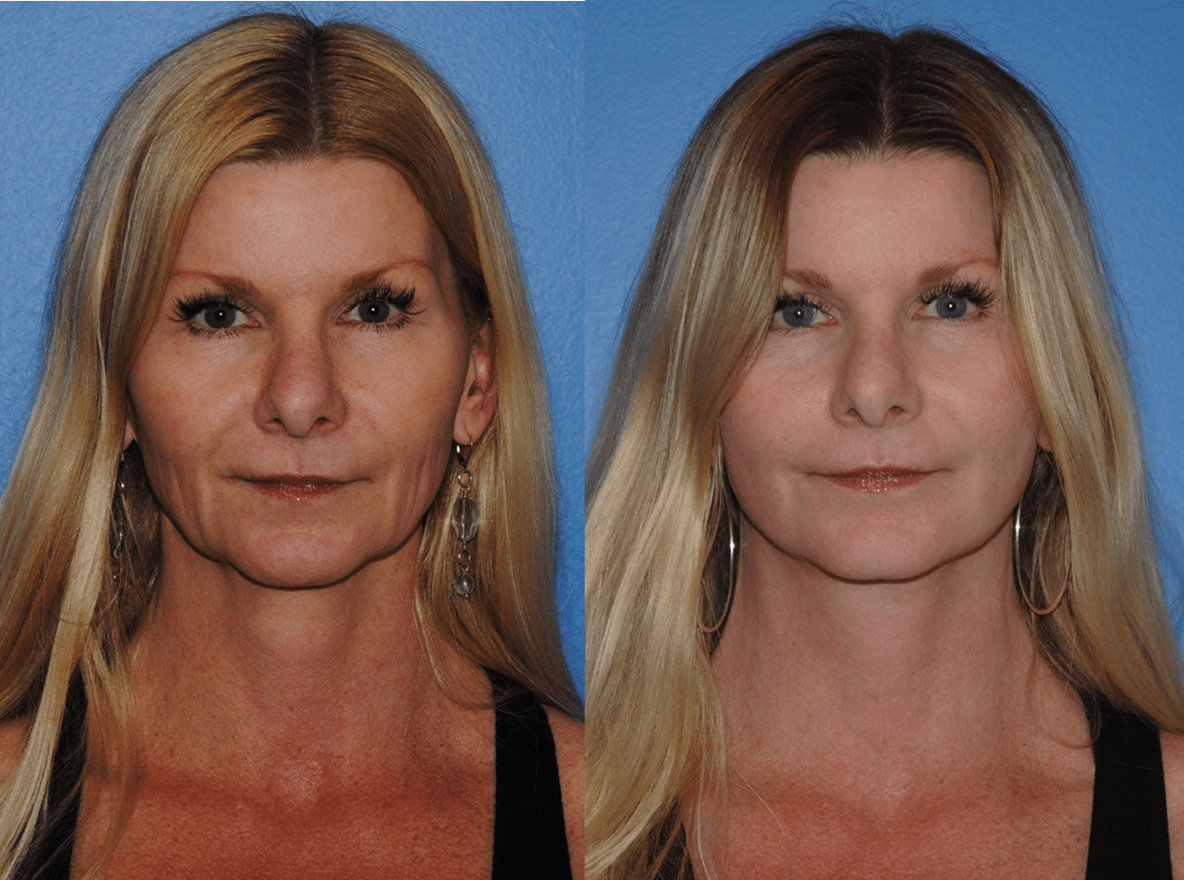 Best Facelift Surgeon Newport Beach