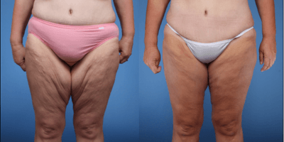 Post Bariatric Body Contouring