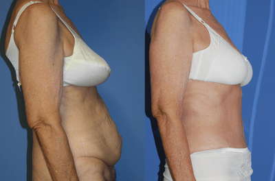 Post Bariatric Body Contouring_NB