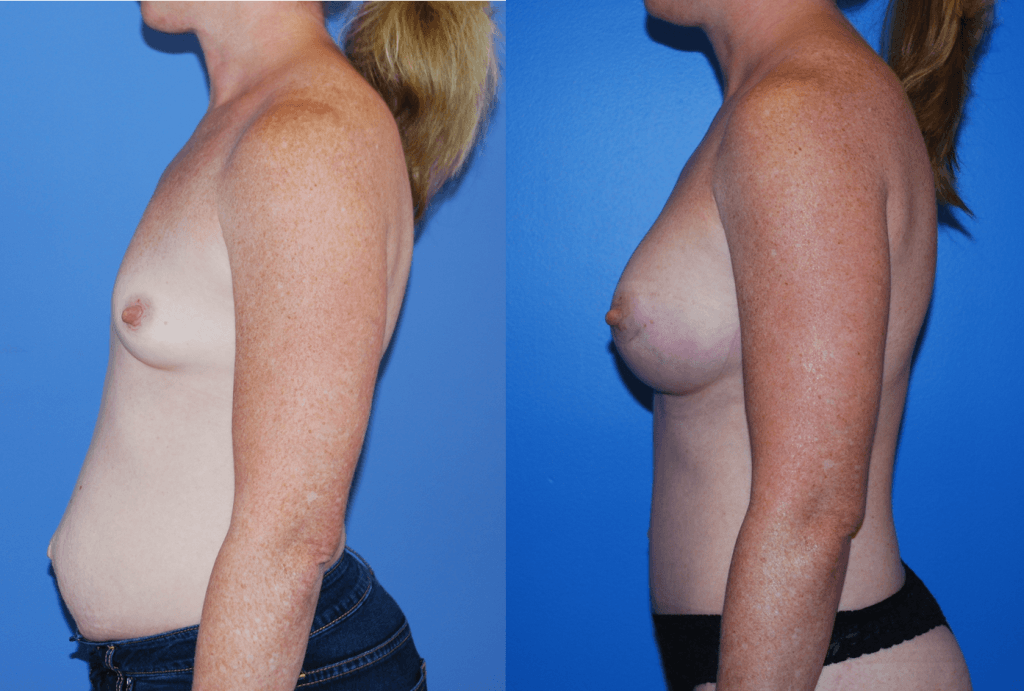 Abdominoplasty Newport Beach