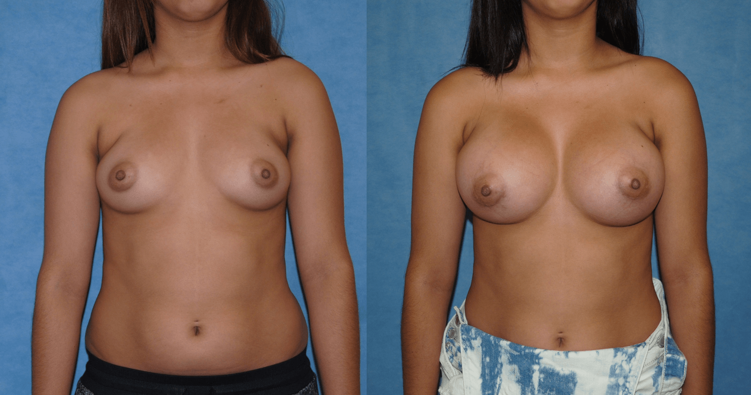 Breast Implants - Silicone Gel before and after