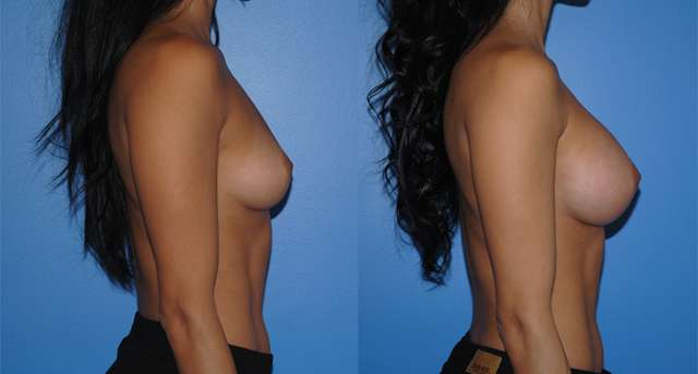 Natural Looking Silicone Breast Implants