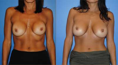 Capsular Contracture Breast Reconstruction Newport Beach