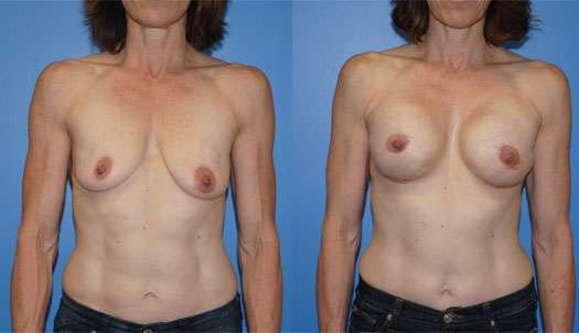 Tissue Expander and Breast Implant Reconstruction