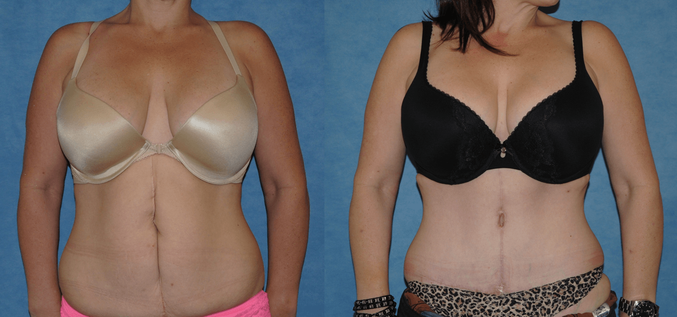 Abdominoplasty Body Contouring