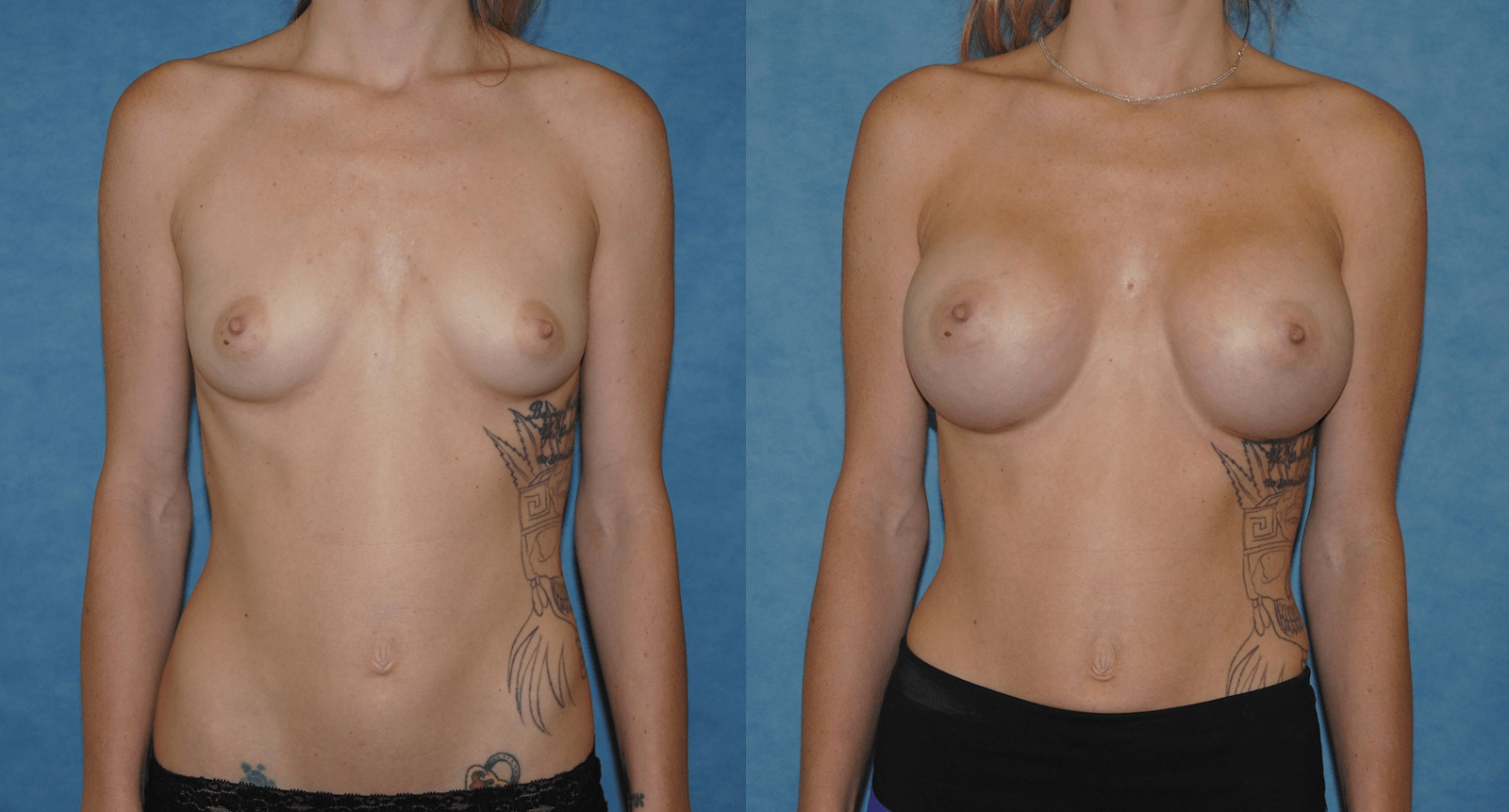 Breast Augmentation Before and After Newport Beach