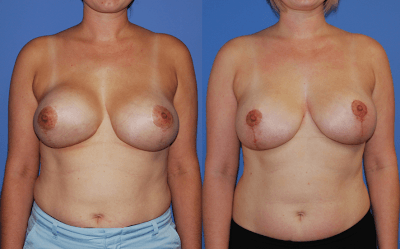 Breast Reduction Newport Beach