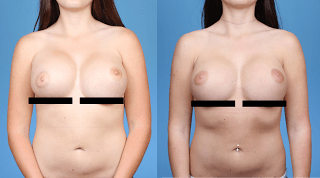 Revision Breast Surgery Fold Correction