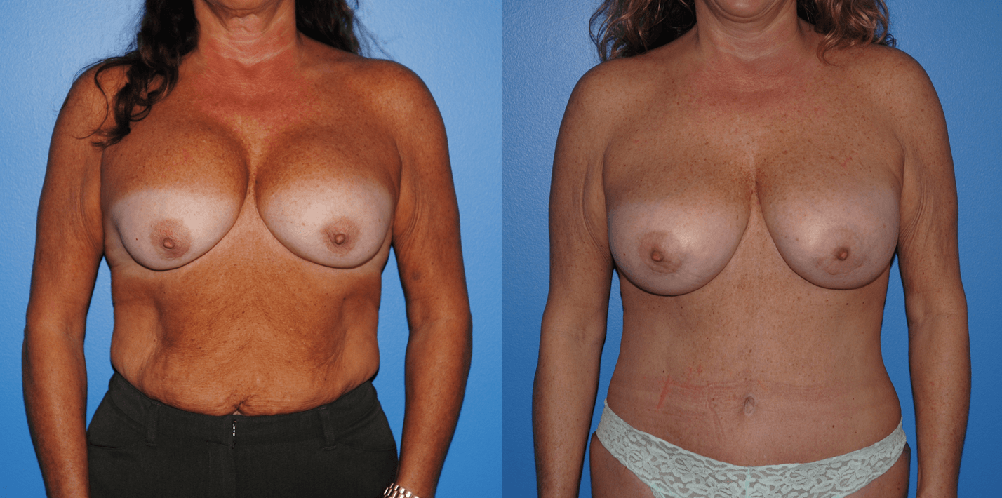 Revision Breast Surgery Before and After