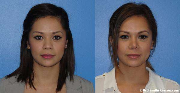 Asian rhinoplasty in Newport Beach