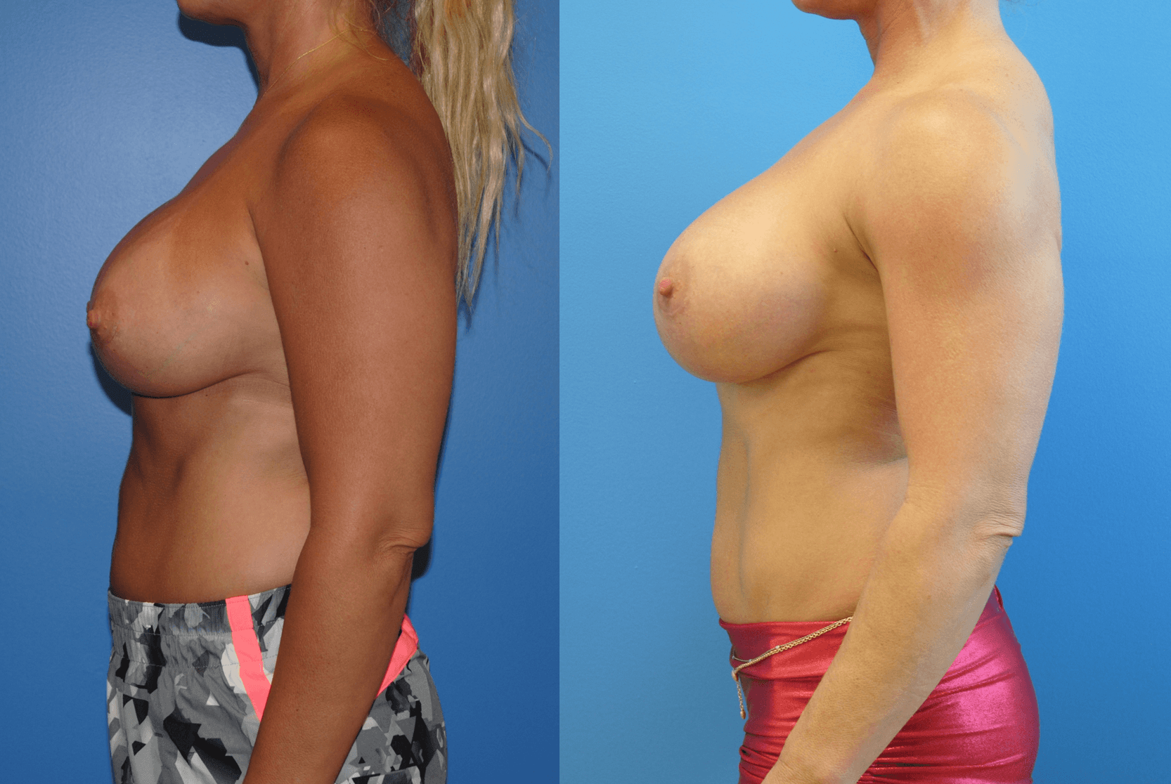 Silicone Gel Breast Implant Orange County