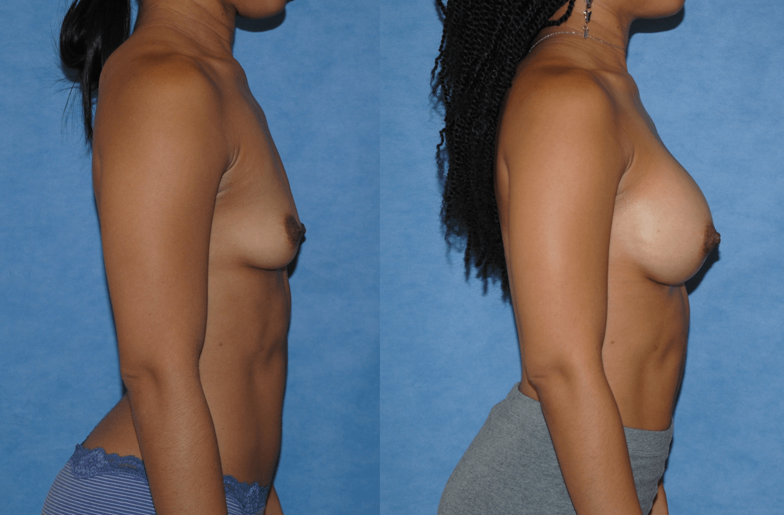 Breast Augmentation-Silicone Implants-Newport Beach-Dickinson