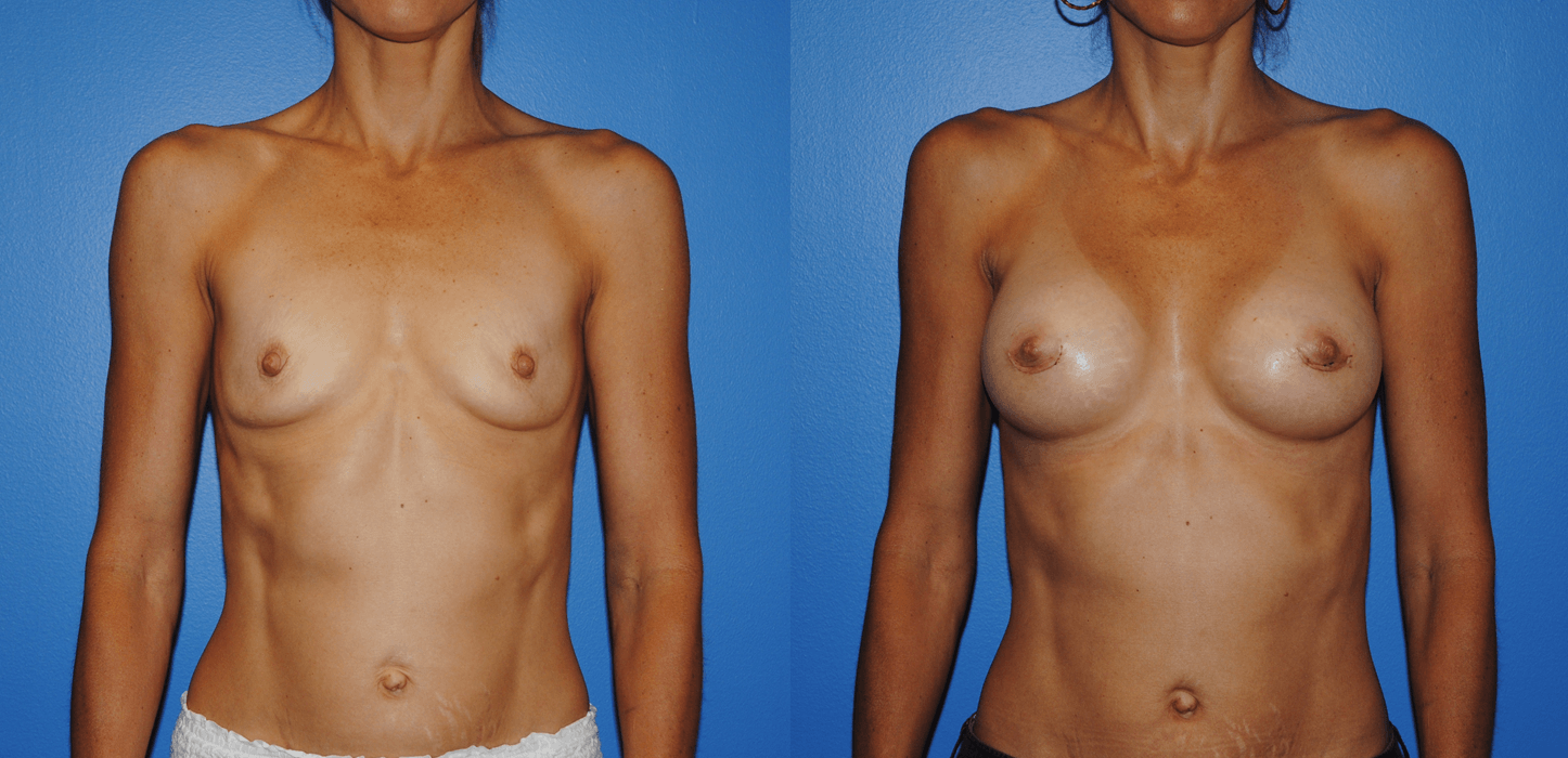 Breast Augmentation Recovery Newport Beach