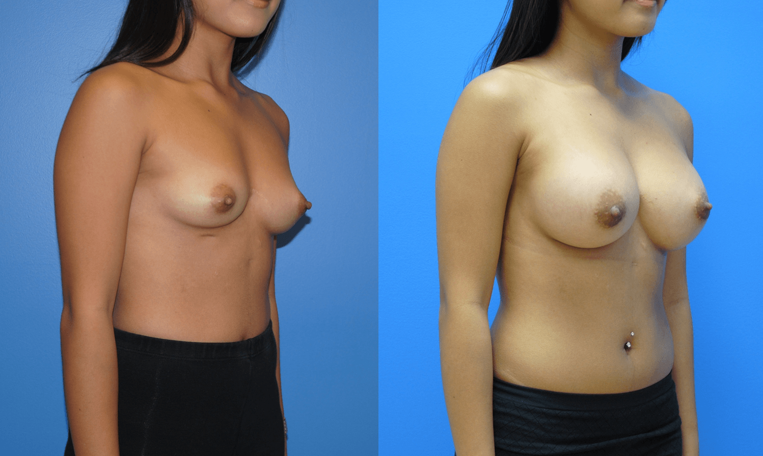 Breast Reconstruction-Orange County-Dickinson