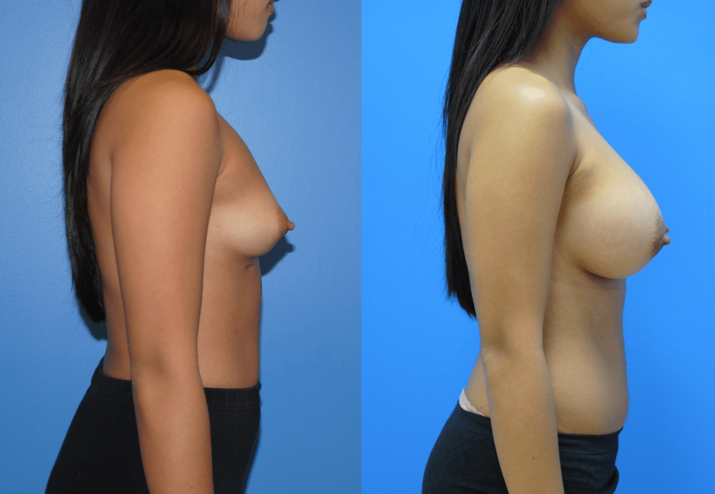 Breast Reconstruction-Orange County